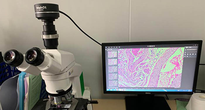 明美显微镜相机MS60应用于病理切片检验