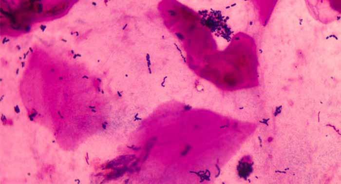 明美显微镜相机应用于细菌样品的成像