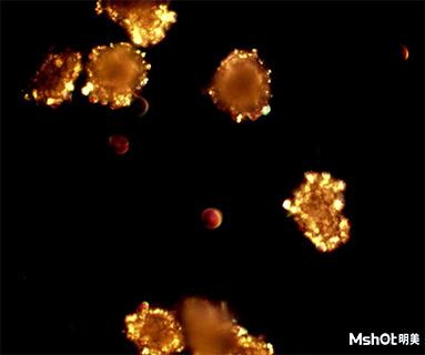 头孢克肟晶体在偏光显微镜下的特征