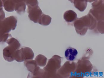 4血液中的白细胞观察的重要工具—广州明美自主研发的显微镜相机MD50.jpg