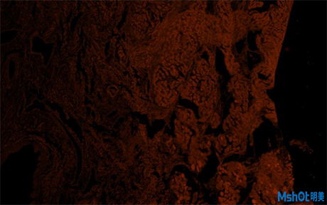 倒置荧光显微镜应用于北京大学深圳医院口腔上皮细胞观察2.jpg