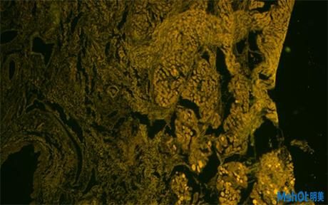 倒置荧光显微镜应用于北京大学深圳医院口腔上皮细胞观察3.jpg