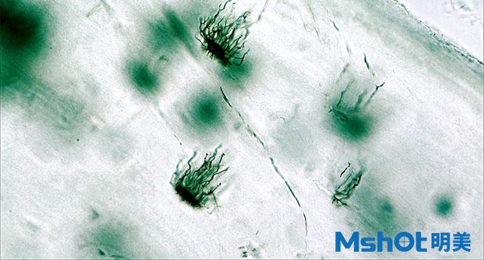 生物显微镜下的软骨陷窝.jpg