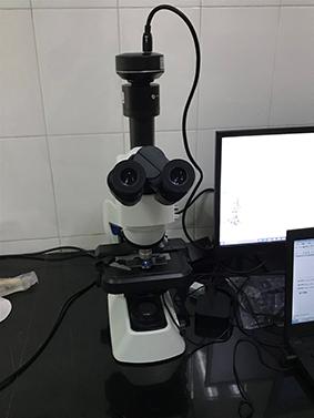 明美生物荧光显微镜助力华中科大校医院真菌检测