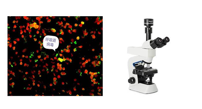 呼吸道检测显微镜.jpg