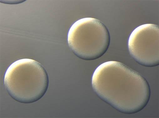 显微镜相机MS60下的菌落.jpg
