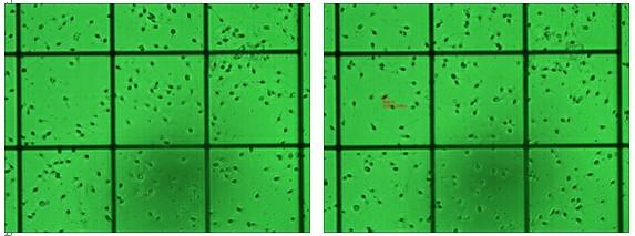 数码成像系统在精子检测中的应用1.jpg