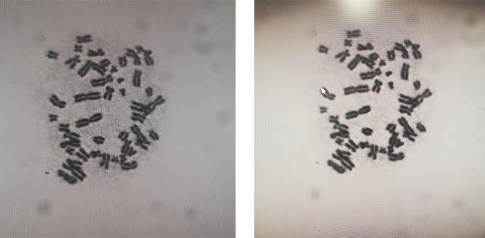 明美黑白显微镜相机用于染色体观察